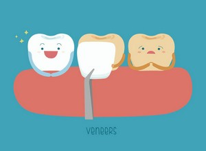 Dentes de porcelana