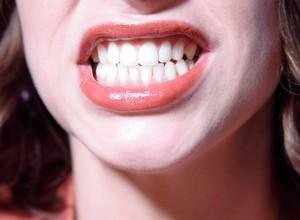 dentista especialista em gengiva