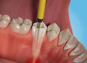 dentista especialista em tratamento de canal