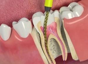 dor de dente como curar