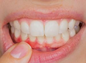 dor de dente constante