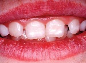 dor de dente em bebe