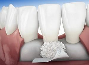 Conheça o enxerto de osso para implante