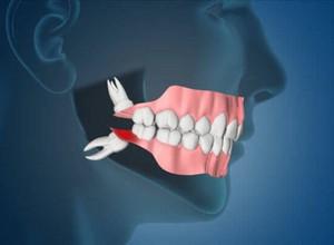 extração do dente do siso