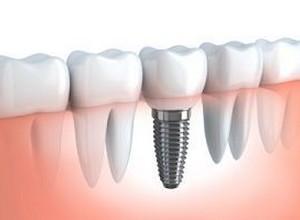 implante cone morse