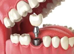 implante dentário preço
