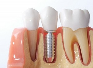 implante imediato