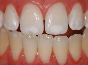 mancha marrom no dente
