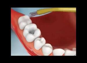 manchas pretas nos dentes de leite