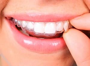 placa dentária