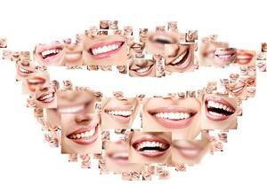 plano dentário que cobre implante