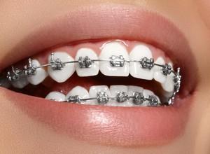 plano odontológico com carência zero