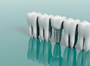 procedimento de implante dentário