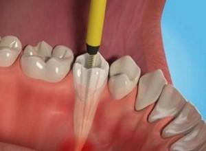 sintomas de dente com canal inflamado
