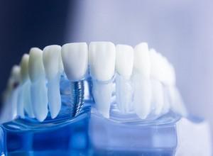 tipos de enxerto ósseo para implante dentário