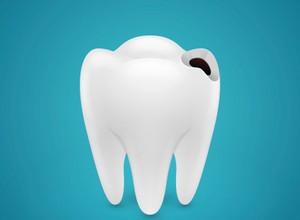 tratamento da cárie dentaria