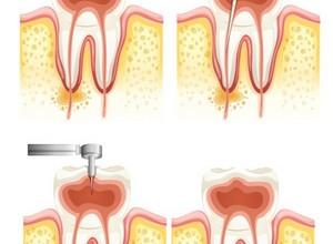 tratamento dentário canal