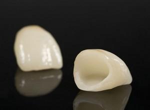 tratamento dentário com porcelana
