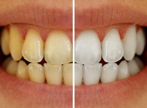 tratamento para dentes amarelos