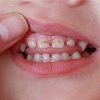 Cárie dentaria