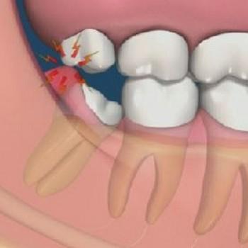 Como tirar inflamação do dente