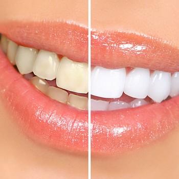 Dente acinzentado