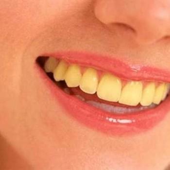 Dentes amarelos o que fazer