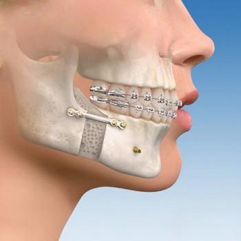 Enxerto ósseo para implante