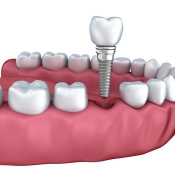 Extração de dente