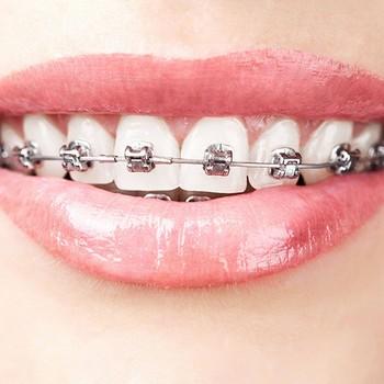 Odontologia ortodontia