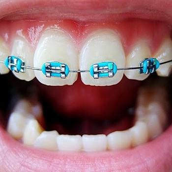 Plano odontológico com aparelho