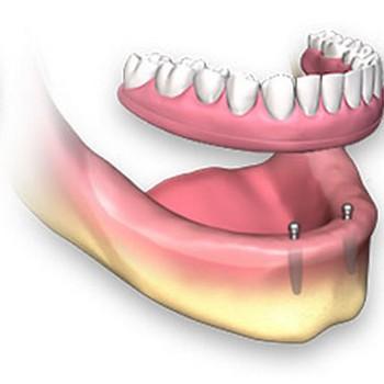 Plano odontológico implante