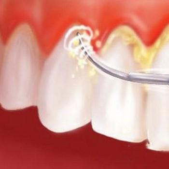 Removedor de tártaro dental