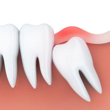 Siso dente