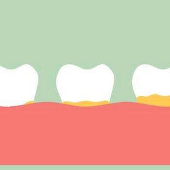 Tártaro nos dentes tem cura